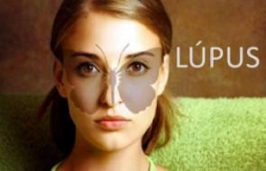 Hoje é o Dia para falar do Lúpus