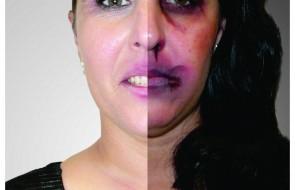 Hospital Santa Isabel adere a Campanha pelo fim da Viol�ncia contra a Mulher