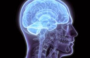 Perda de memória pode estar associada a problemas neurológicos